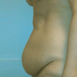 Manhattan abdominoplasty before 4